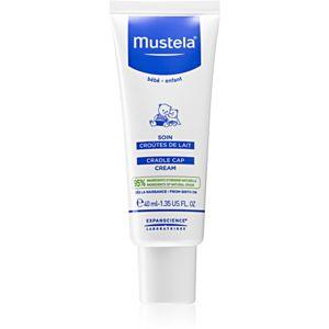 Mustela Bébé krém gyermekeknek a hajban lévő elhalt bőrre 40 ml